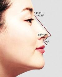 微整形-玻尿酸隆鼻講解