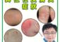 皮膚癌、異位性皮膚炎、體質、工作疲勞、免疫力、感冒、發燒
