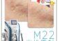 M22光梭雷射治療,帶你離開月球表面