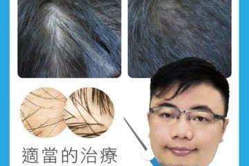 落髮問題 專業醫師幫您解決